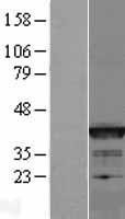 NBL1-07949 - Bcl G Lysate