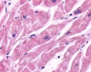 NLS2656 - Beta-2 adrenergic receptor