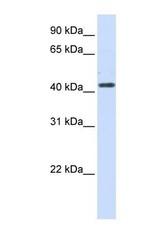 NBP1-59531 - 3-beta HSD2 / HSD3B2