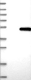 NBP1-84971 - Biglycan