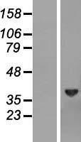 NBL1-07993 - Biliverdin Reductase Lysate