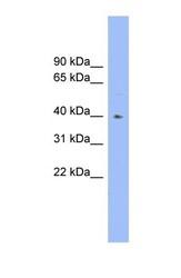 NBP1-57016 - Fucosyltransferase 1