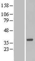 NBL1-08018 - Boll Lysate