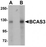 NBP1-77125 - BCAS3 / GAOB1
