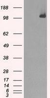 NBP1-47680 - BUB1B