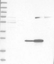 NBP1-87183 - C-reactive protein (CRP)