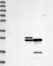 NBP1-87184 - C-reactive protein (CRP)