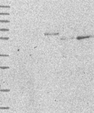 NBP1-81891 - DLN-1