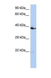 NBP1-58219 - C10orf46