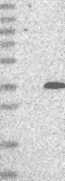 NBP1-82705 - C10orf96