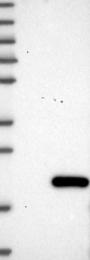 NBP1-82071 - C11orf1