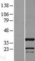 NBL1-08106 - C11orf49 Lysate