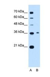 NBP1-56904 - C11orf54