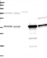 NBP1-87194 - C11orf54