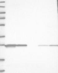 NBP1-83174 - C11orf73