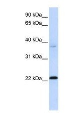 NBP1-56712 - C11orf74