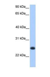 NBP1-70432 - C12orf68