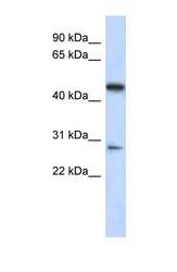 NBP1-56736 - LACC1 / C13orf31