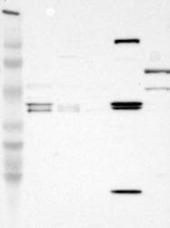 NBP1-84070 - DNAAF2 / KTU