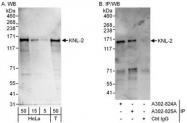 NBP1-47290 - M18BP1 / KNL2