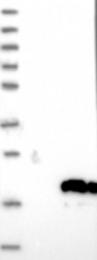NBP1-82049 - C14orf177
