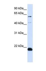 NBP1-59680 - C14orf180