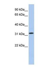 NBP1-70437 - C15orf26
