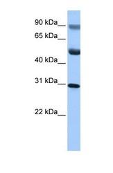 NBP1-53184 - C17orf39
