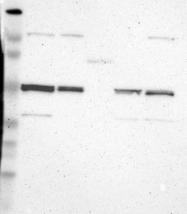 NBP1-82563 - Njmu-R1