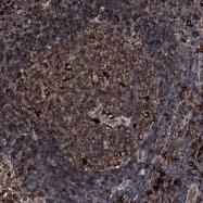 NBP1-85063 - C18orf10