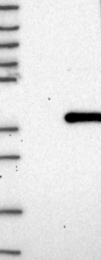 NBP1-85062 - C18orf10