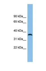 NBP1-57734 - C18orf25