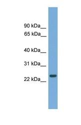 NBP1-70444 - C19orf18
