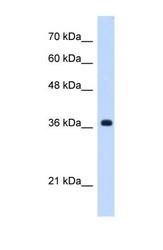 NBP1-70445 - C19orf47