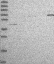 NBP1-91723 - C19orf47