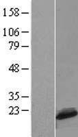 NBL1-08285 - C1D Lysate