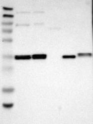 NBP1-88477 - C1GALT1
