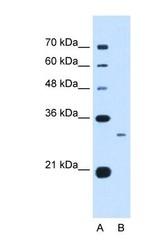NBP1-59056 - C1q B subunit