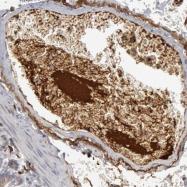 NBP1-89885 - C1q C subunit