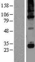 NBL1-08339 - C1QC Lysate