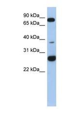NBP1-70448 - C1orf110