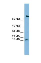 NBP1-70452 - C1orf122