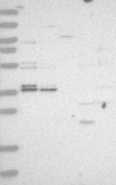 NBP1-85098 - C1orf131