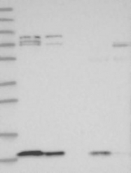 NBP1-85948 - C1orf31