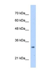 NBP1-53203 - MRTO4