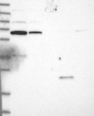 NBP1-81101 - C1orf87