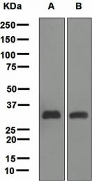 NBP1-95387 - C1q A subunit