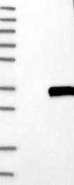NBP1-87492 - C1q A subunit