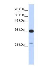 NBP1-58924 - TP53TG5