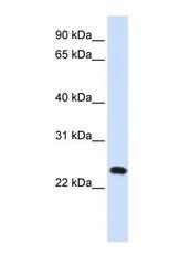 NBP1-62565 - C20orf103